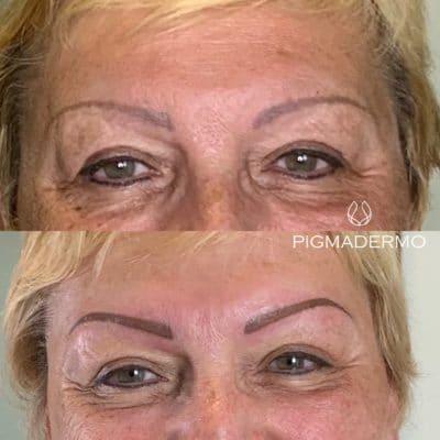 correction sourcils gris